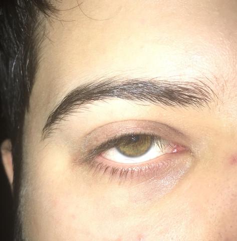 Hier sieht man dass die Augenlider nicht in die Lidfalte passen - (Augenlider, Lidfalte)