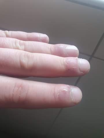 Was kann ich gegen geschwollene Finger am Nagelbett machen?