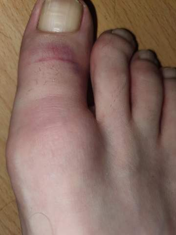 Fußzeh gebrochener Kleinen Zeh