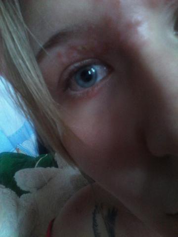 Entzündung  - (Haut, Augen, Entzündung)