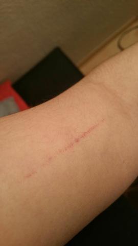 Antwortgesucht - (Haut, Verletzung, Kratzer)