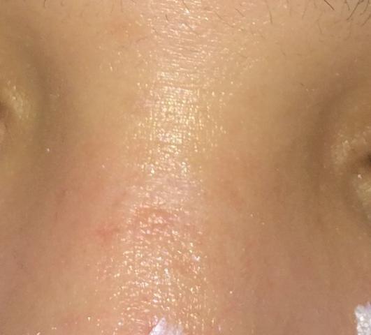 Nasen - (Nase, Sommersprossen)