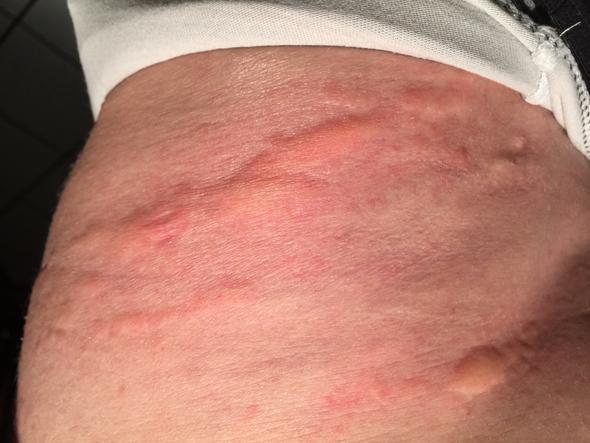 Bauch - (Hautausschlag, Nesselfieber)