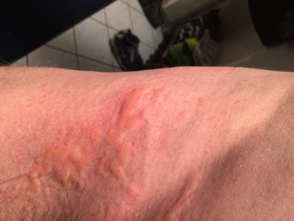 Rücken - (Hautausschlag, Nesselfieber)
