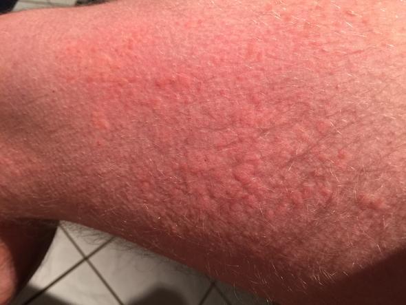 Wade - (Hautausschlag, Nesselfieber)
