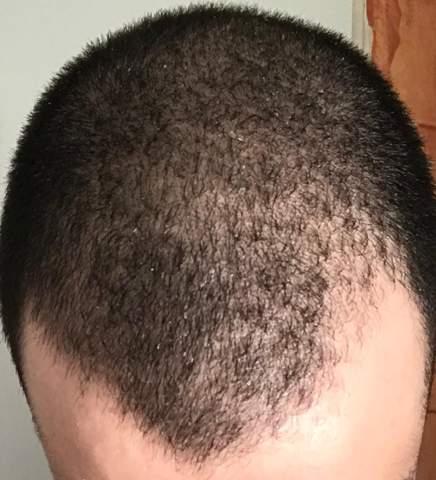 Haare vor paar Monaten während Rasur versehentlich abgezogen - jetzt habe ich eine kahle/dünne Stelle an meiner haarlinie - wird das wieder normal?
