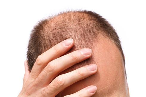 Haare - (Haarausfall, Kopfhaut, Chirurgie)