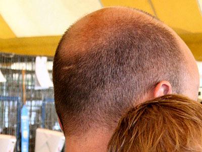 Die Maske für das Haar aus dem Ton gelb