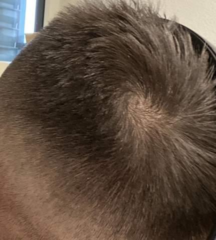 Haarwirbel wie entfernen?