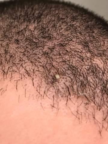 Hab heute morgen einen weißen Pickel auf meiner Kopfhaut bemerkt - was ist das?