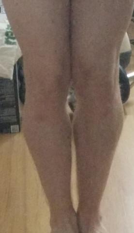 Hab ich X-Beine oder eine andere Fehlstellung?