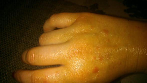 hand - (Haut, Jucken, Hautausschlag)