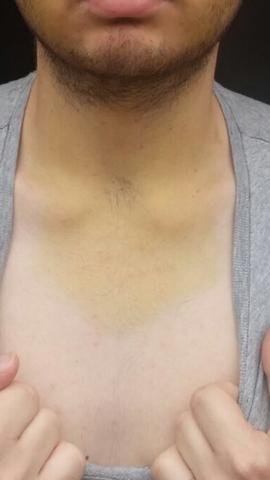 Habe einen gelben Bluterguss bis zum Hals nach einer Weisheitszahn OP ist das normal?
