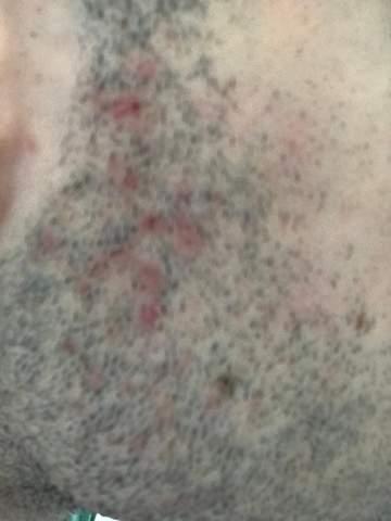 Habe ich eine Hautkrankheit? Dermatitis? Warum habe ich diese roten Stellen?