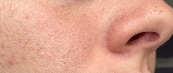 Habe ich eine Hautkrankheit?