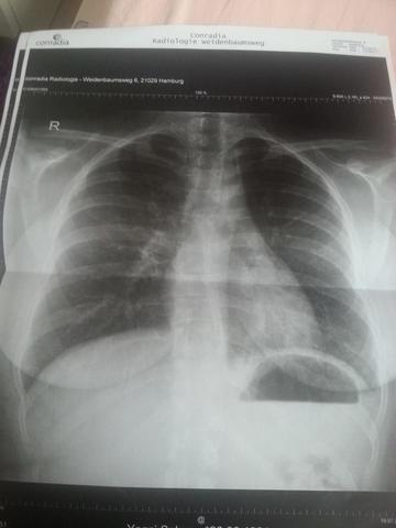 Röntgenbild 1 - (Entzündung, Husten, Lunge)