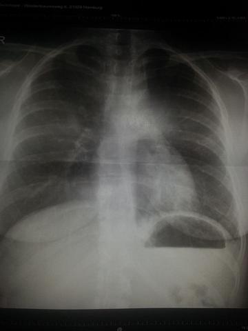 Röntgenbild 2 - (Entzündung, Husten, Lunge)