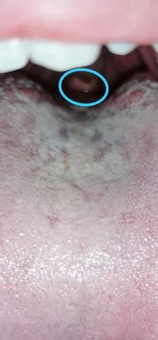 Habe ich Krebs im Mund/Rachen?
