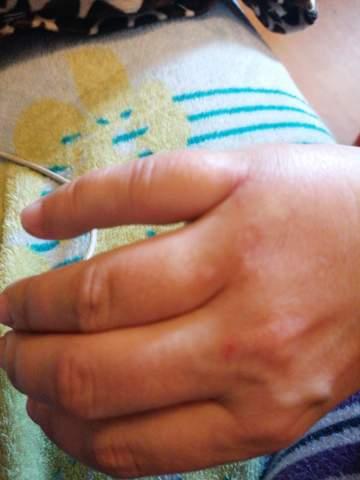 Habe ich mein Finger gebrochen?