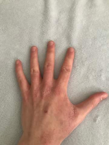 Habe ich Neurodermitis? Warum sind meine Hände so?