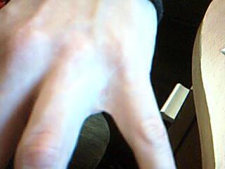 Finger - (Haut, Allergie, Ausschlag)