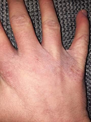 Hände trocken oder andere Ursache?