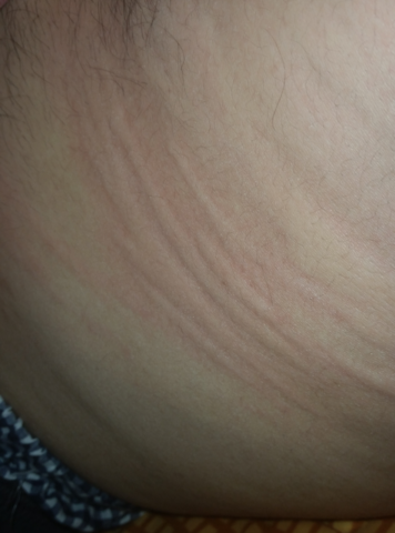 Seitlich im Bauchbereich - (Haut, Juckreiz, Ausschlag)