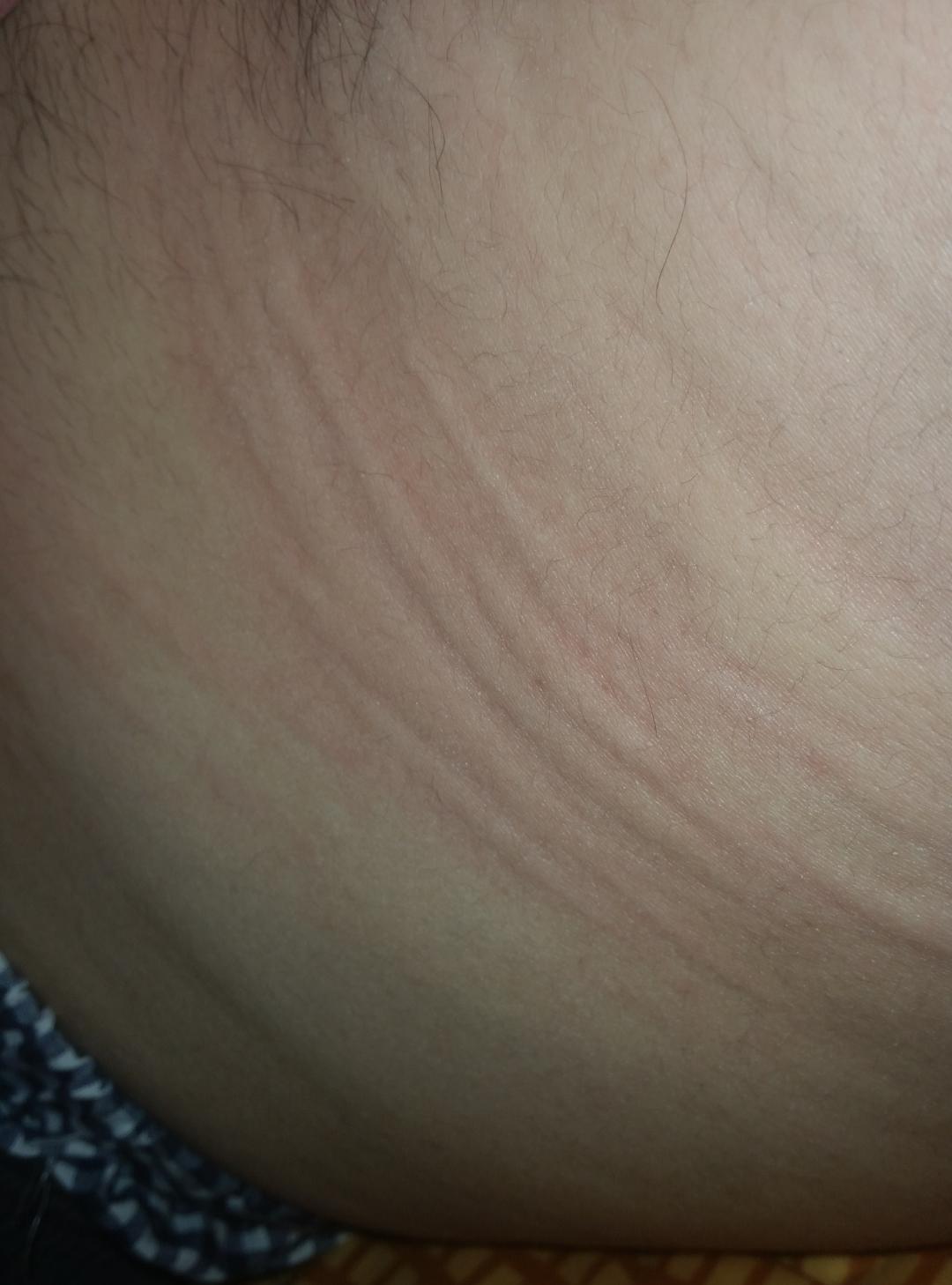 Nach der Operation der Hämorrhoide des Problems mit dem Stuhl
