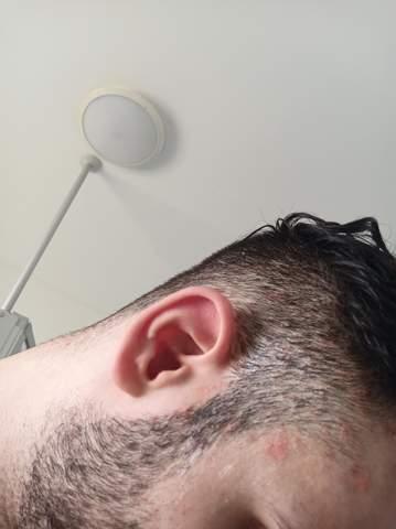 Hallo, ich hab seit paar Wochen schon diese Flecke auf meine Kopfhaut sie jucken etwas und wenn ich dran gehe vermehrt es sich und entzündet sich was ist das?