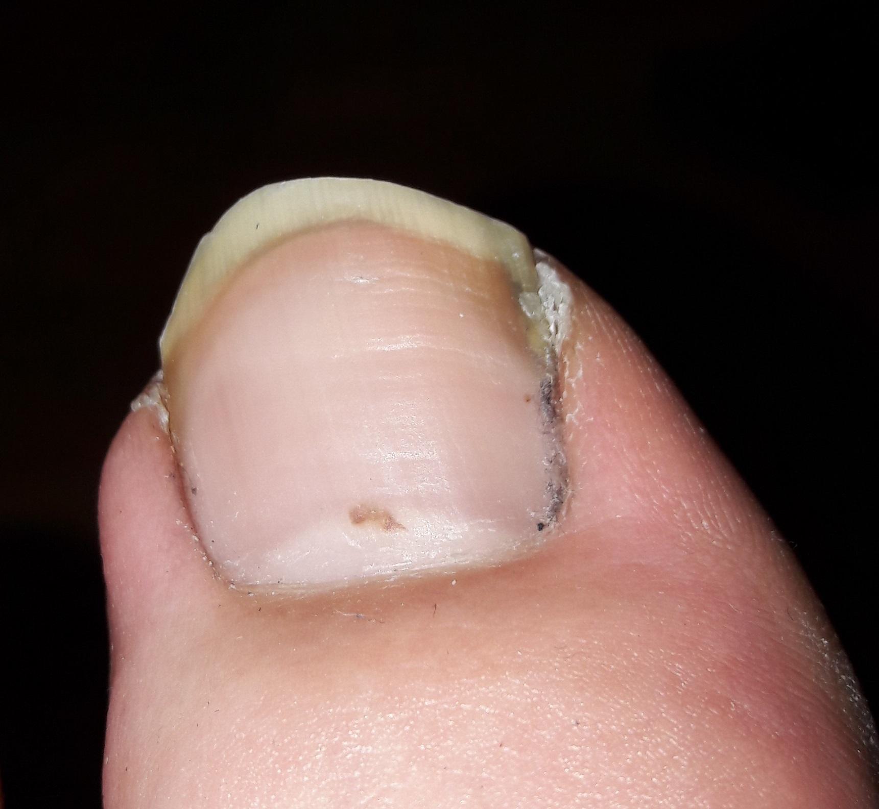 Hallo, Ich habe heute am Nagel meines Zehes einen kleinen