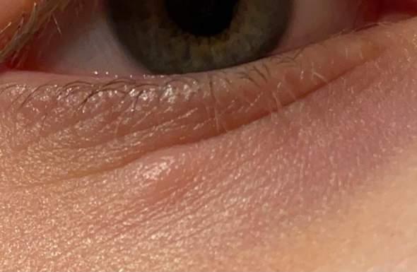 Hallo, ich habe seit mehreren Tagen diese Art Hubbel unter dem Auge, dieser ist auch größer geworden. Was könnte das sein? Tipps?
