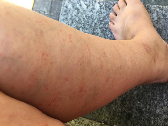 Ausschlag an den Beinen  - (Beine, Hautausschlag)