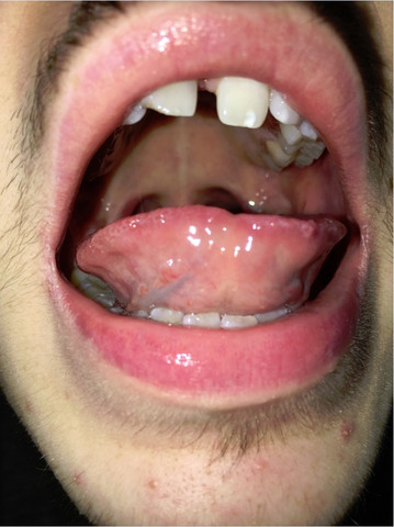 Bild von der zunge 1 - (Mund, Zunge)