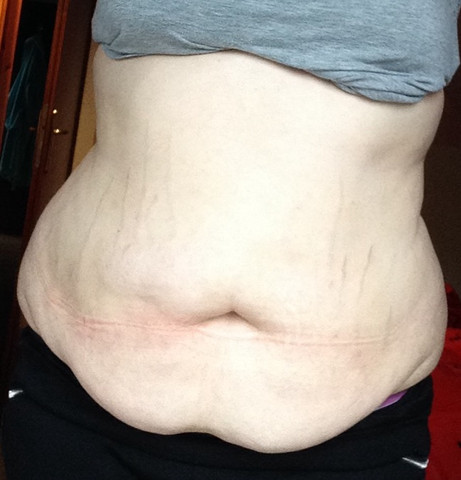 Hier meine Hüfte, aktuelles Bild von heute - (abnehmen, Gewicht, Hüfte)