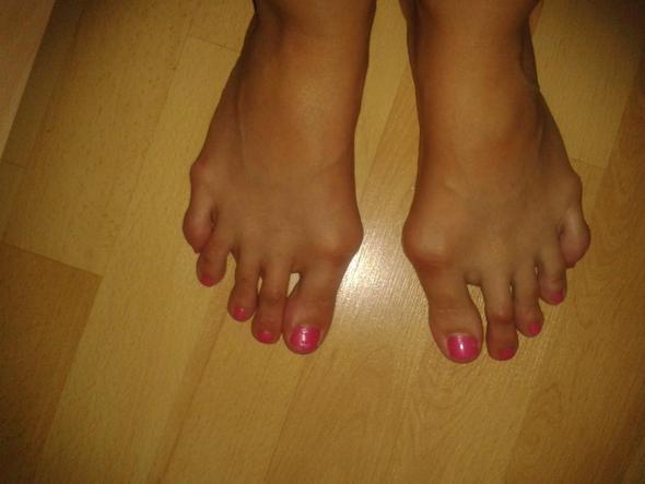 meine füße - (Kinder, Füße, Hallux valgus)