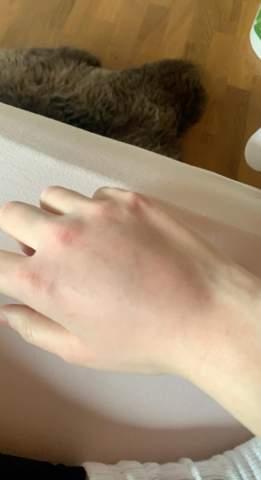 Hand gebrochen, verstaucht oder geprellt?