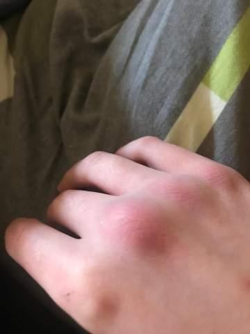 handknochen gebrochen?
