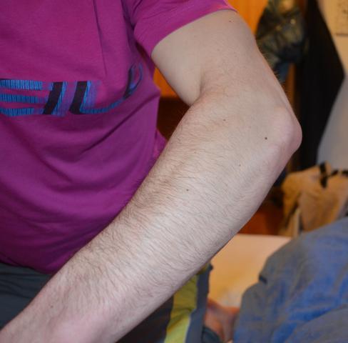 geschwollener ellenbogen - (Schmerzen, Verletzung, Gelenke)