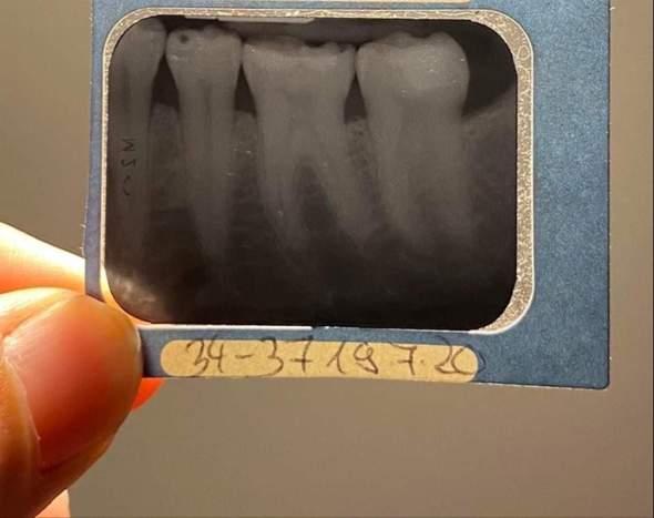 Hat ein Zahn Karies?