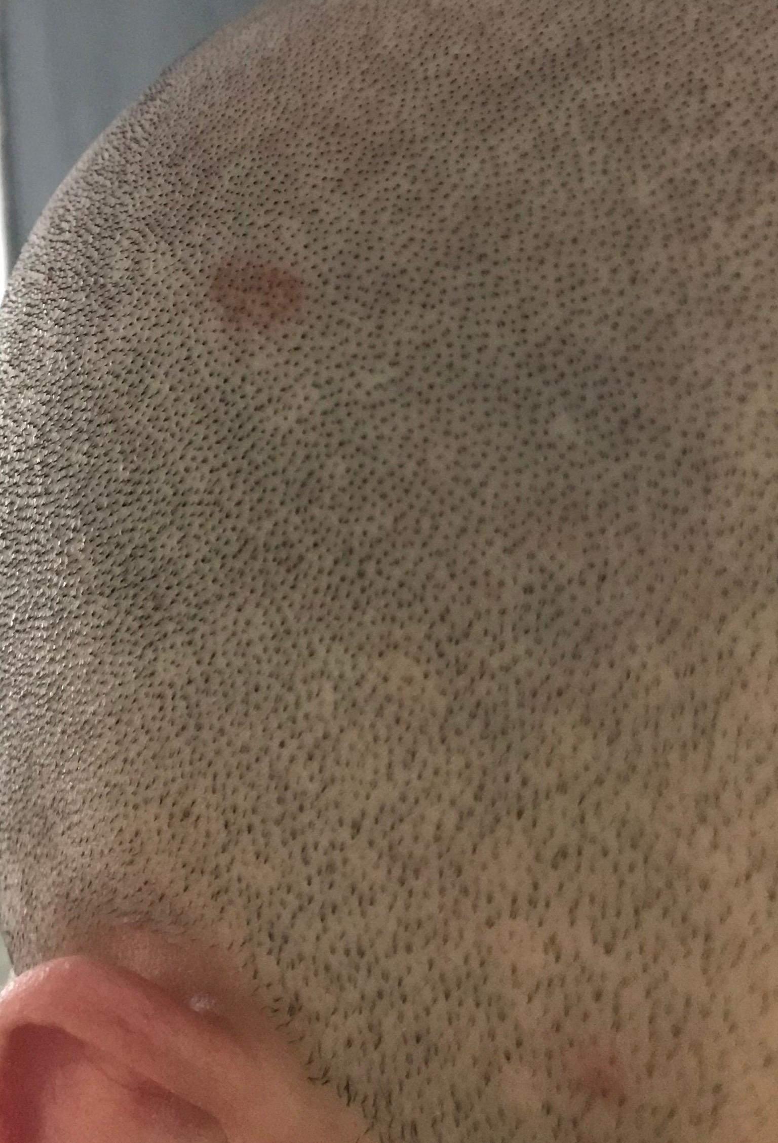 Hatte mich gestern an der Kopfhaut geschnitten - Darf ich