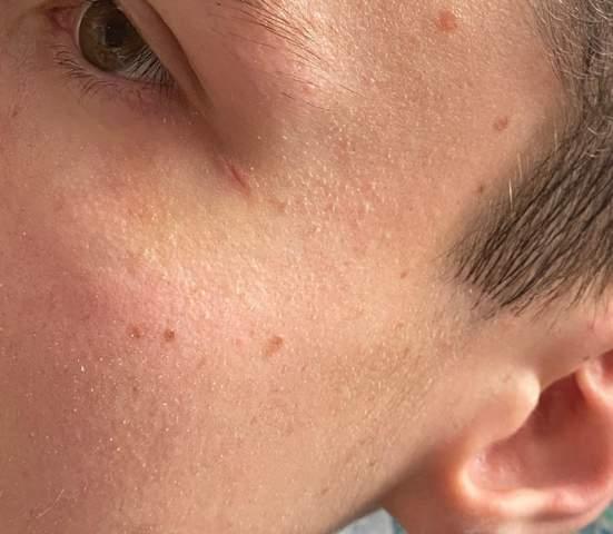 Haut nach kleiner platzwunde nicht ganz zusammen gewachsen?