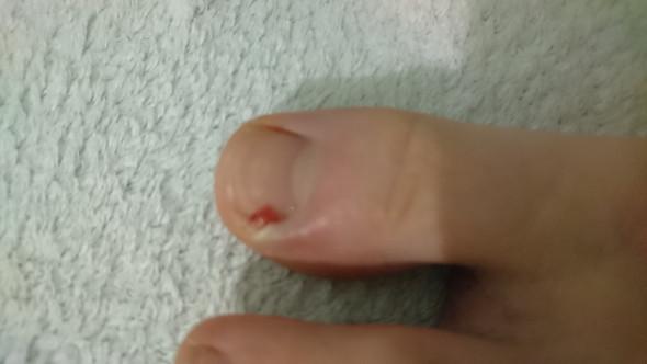 Haut neben dem Nagel entzündet?
