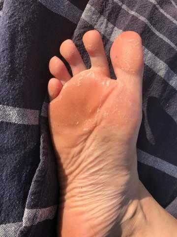 - (Haut, Füße)