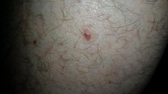 09.10. - (Haut, Dermatologie, Hautkrebs)