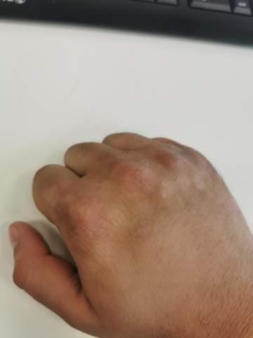 Haut teilweise verfärbt?