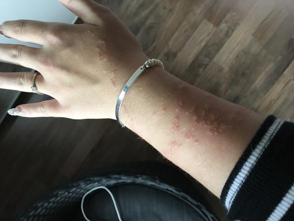 Hautausschlag am Arm?