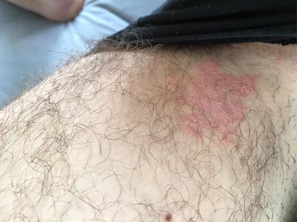 Hautausschlag am Oberschenkel?