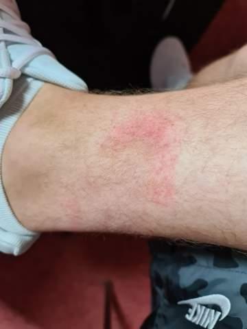 Hautausschlag am rechten Bein, was ist das?
