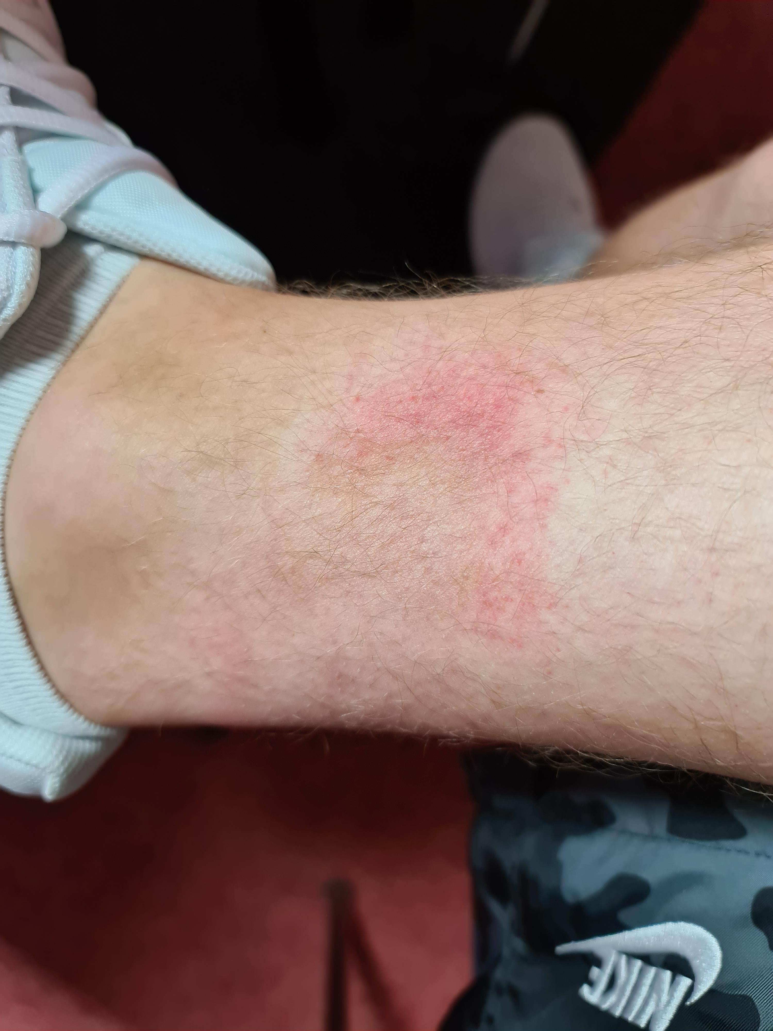 Hautausschlag am rechten Bein, was ist das? (Haut, Beine