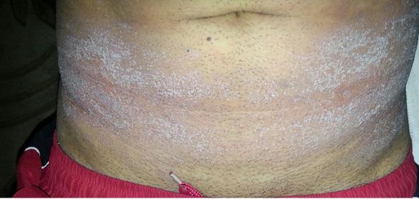 Hautausschlag nach Rausur